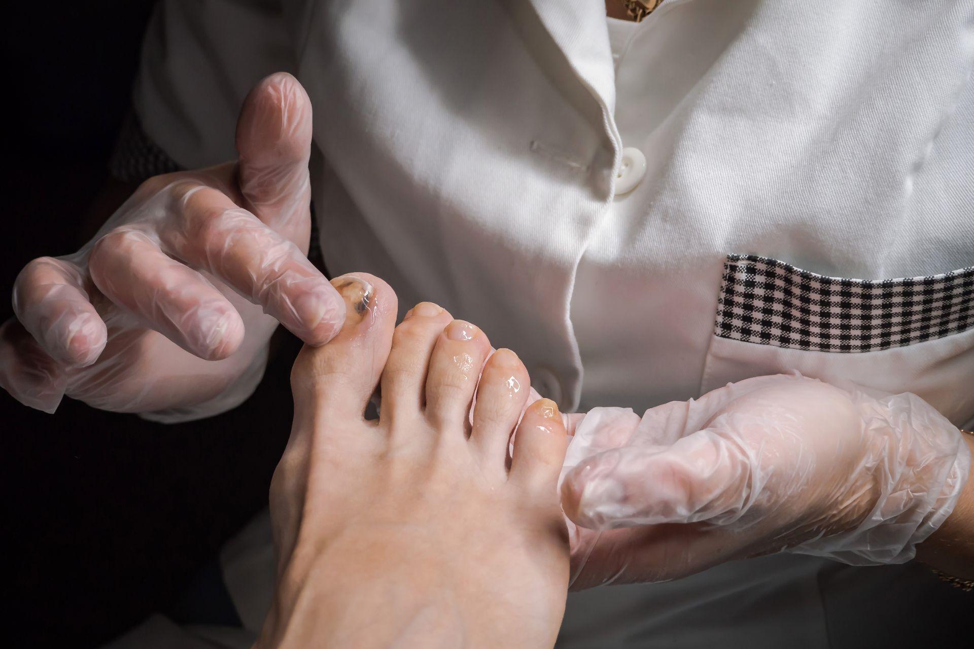 Glivična okužba nohtov na nogah
