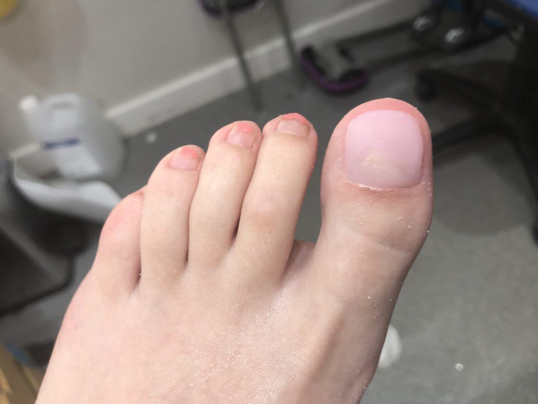 Nohtna prostetika na nogah